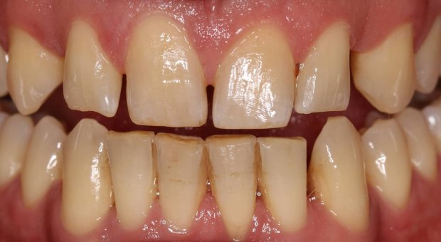 Před dentální hygienou