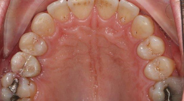 Horní zubní oblouk po léčbě