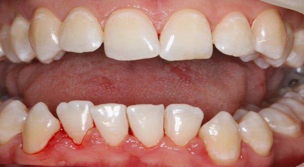 Po dentální hygieně