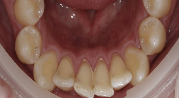 Před dentální hygienou_1