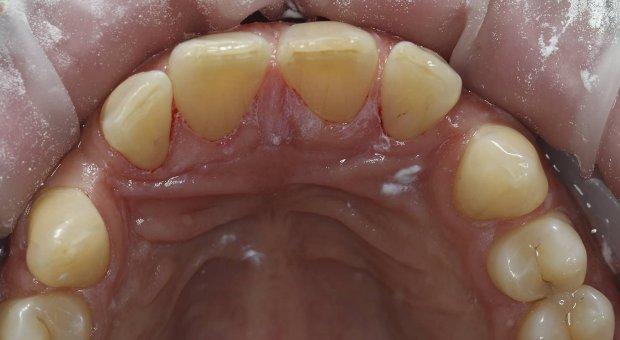 Po dentální hygieně_2