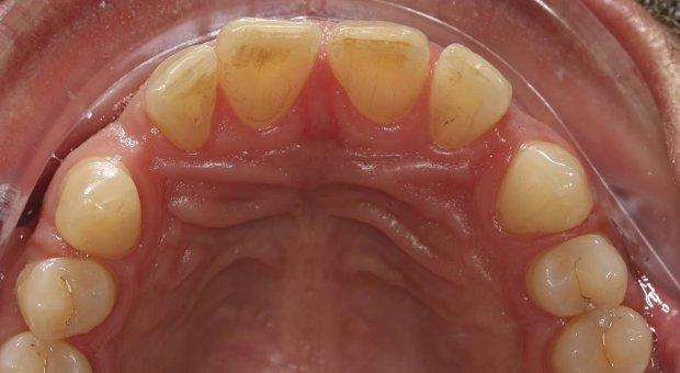 Před dentální hygienou_2