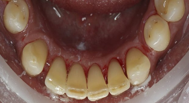 Po dentální hygieně_1